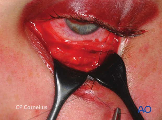 Transconjunctival lower-eyelid approaches