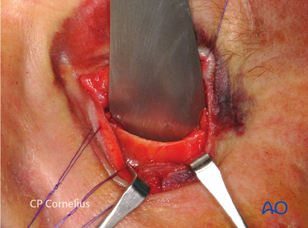 Transconjunctival approach with lateral skin extension