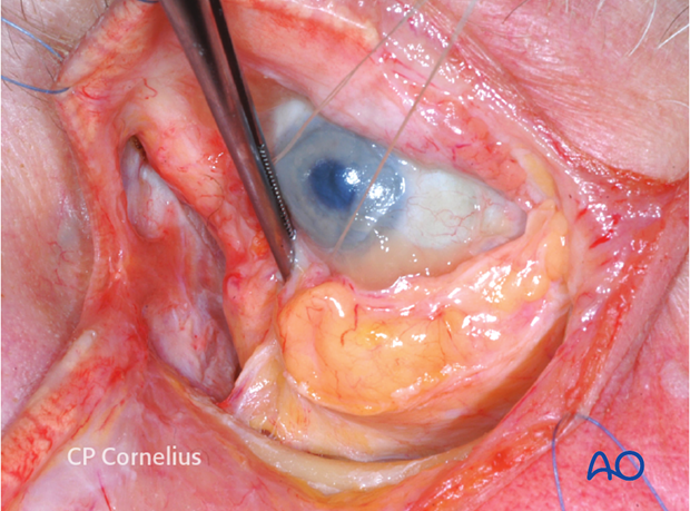 Combination of inferior and medial transconjunctival