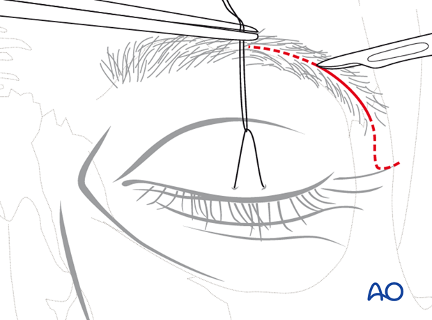 Lateral eyebrow approach