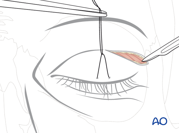 Upper-eyelid approach