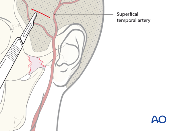 indirect approaches to the zygomatic arch temporal and transoral approaches