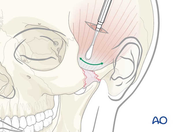Indirect approaches to the zygomatic arch