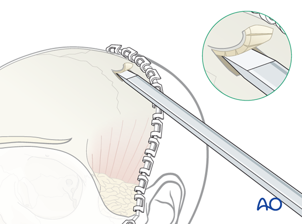 Harvesting cranial bone grafts