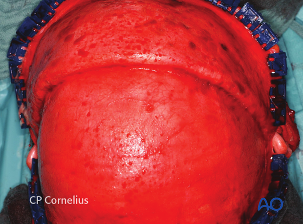 Continued dissection of the coronal flap to the level of the supraorbital rims