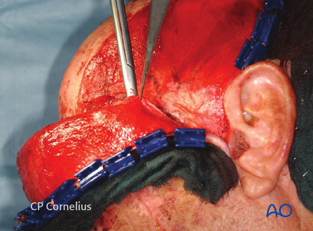 Incision of the superficial temporal fascia for exposure of the zygomatic arch