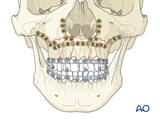 palatoalveolar complex injury