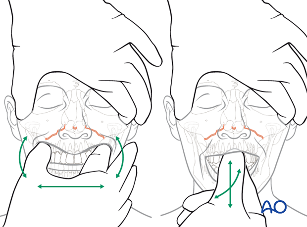 examination of patients with midfacial injuries