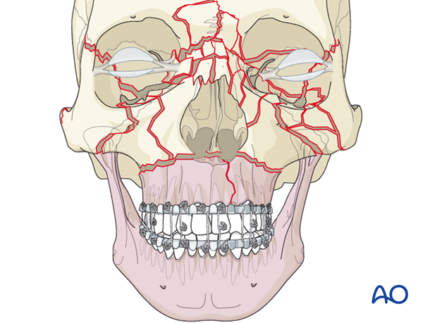 panfacial fractures sequencing of repair