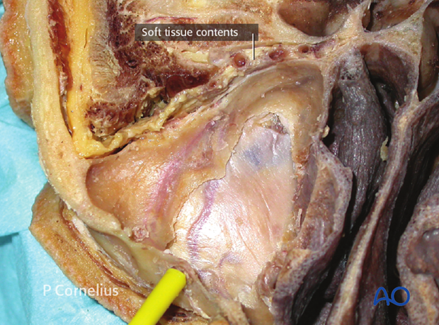 periorbital dissection of inferior orbital wall orbital floor