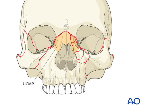 AOCMF Classification Midface (Level 1 and 2)