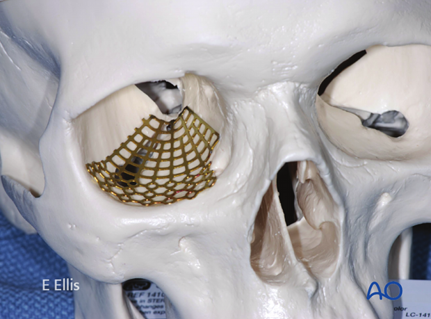 orif 3 point fixation with orbital reconstruction