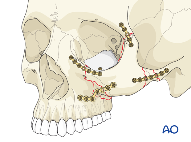 orif 4 point fixation with orbital reconstruction
