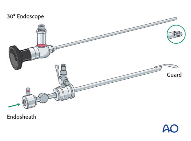 Endoscopic approach to the anterior table