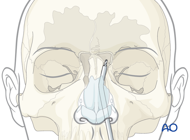 Endoscopic transnasal approach to the frontal sinus