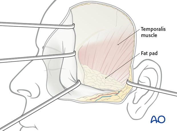 Lateral skull base approach