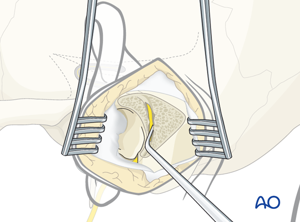 Outline of the facial nerve