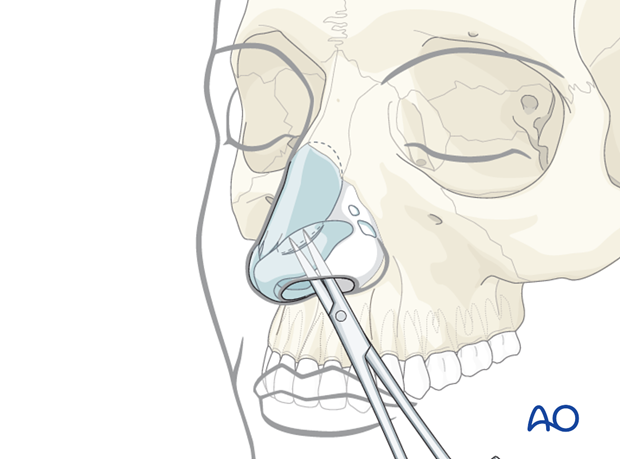 Endonasal approaches (transfixion incision and intercartilaginous incisions)