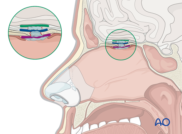 Endoscopic approach to the central skull base
