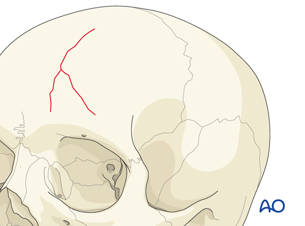Diagnosis of cranial vault fractures