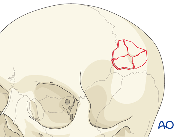 Diagnosis skull base fractures