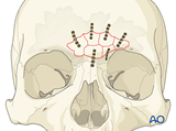 frontal sinus anterior table