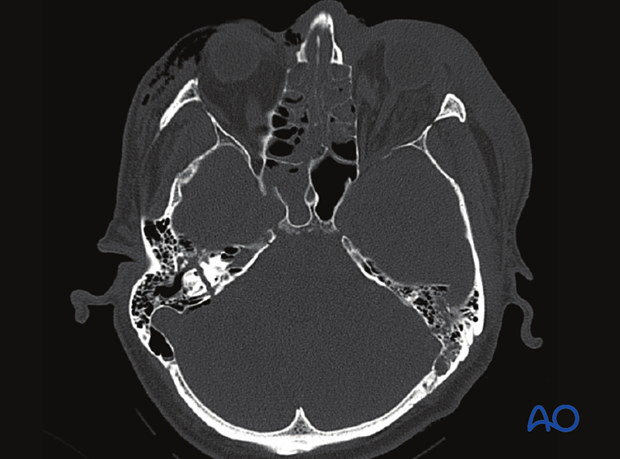 CT imaging of a temporal bone fracture