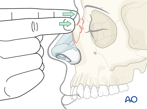 Diagnosis of nasal fractures
