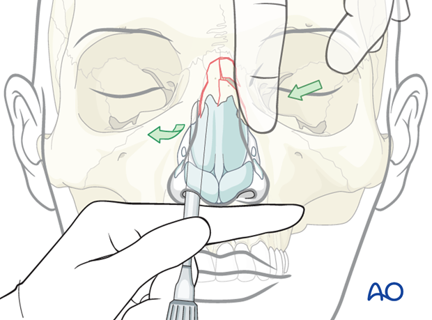 Reduction of nasal bones