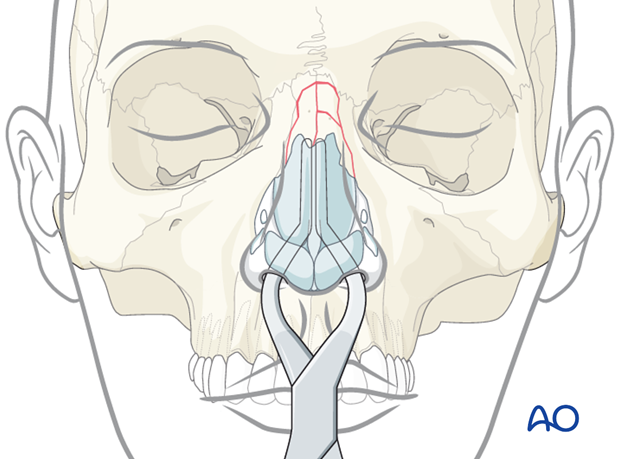 Reduction of the nasal septum
