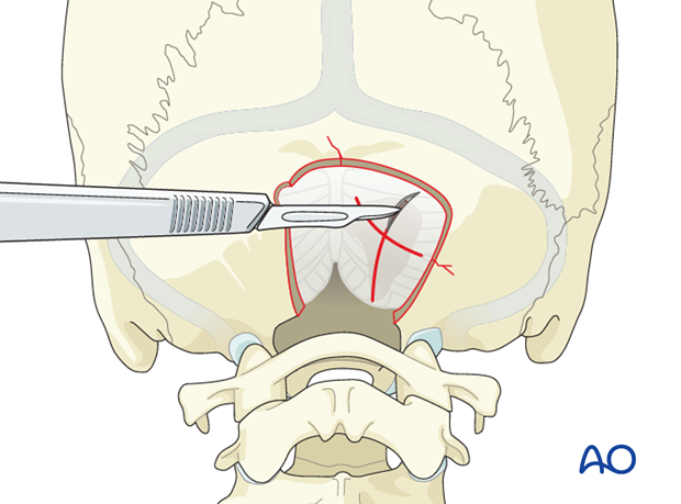 Posterior skull base fracture management
