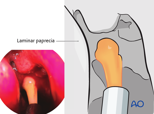 Operative techniques: Transnasal endoscopic approach