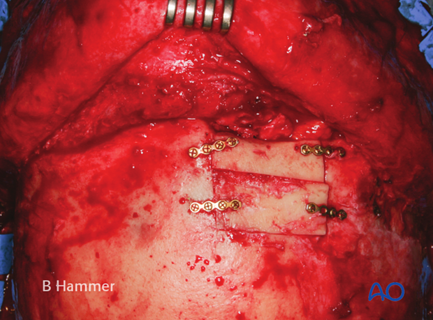 Case example: Partial obliteration of the frontal sinus