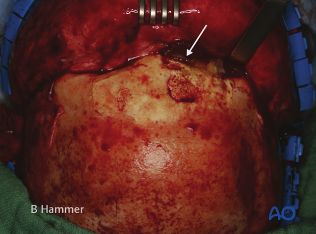 Case example: Infection of a hydroxyapatite graft