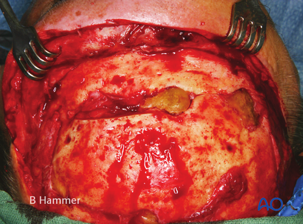 Case example: Infection of a PMMA graft causing recurrent fistulae