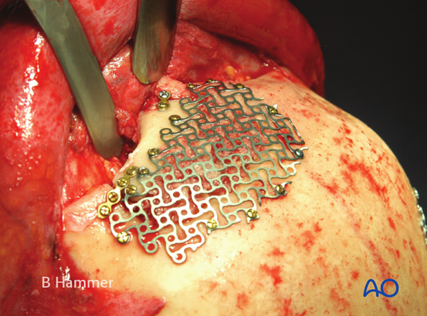 Case example: Infection of allogenic graft, causing swelling and chronic headache