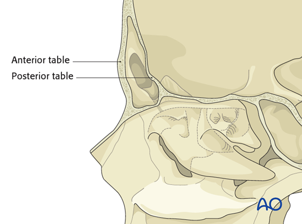 Diagnosis of frontal sinus fractures