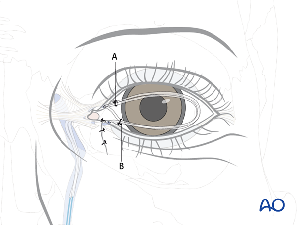 Repair of periorbital soft-tissue injuries and lacrimal system in NOE injuries
