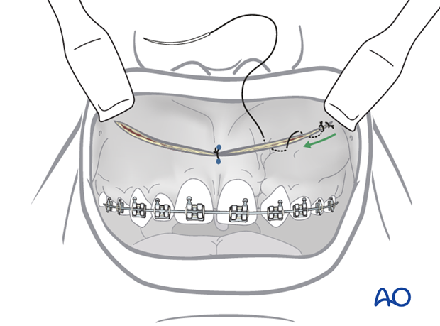 approach to the le fort i level of the midface in cleft lip and palate patients