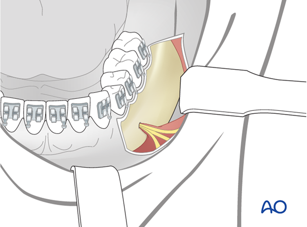 transoral approach to the lateral mandibular body