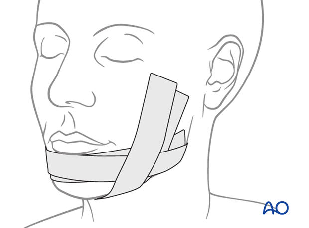transoral approach to the chin