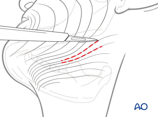 submandibular approach