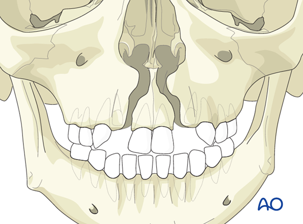 Alveolar bone grafting in the bilateral cleft lip and/or palate patient