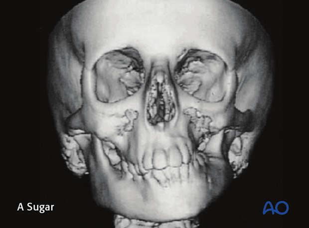 hemifacial microsomia classification