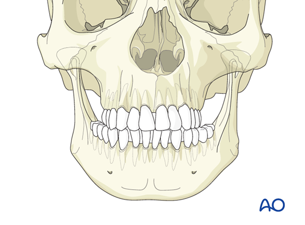 Transverse hyperplasia of the mandible