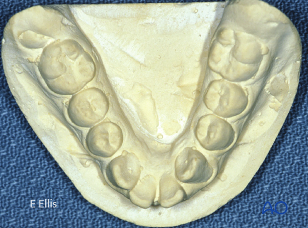 Transverse hypoplasia of the mandible