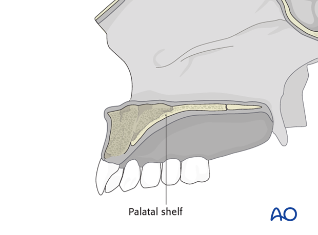 Alveolar bone grafting of unilateral cleft lip and palate - CLP