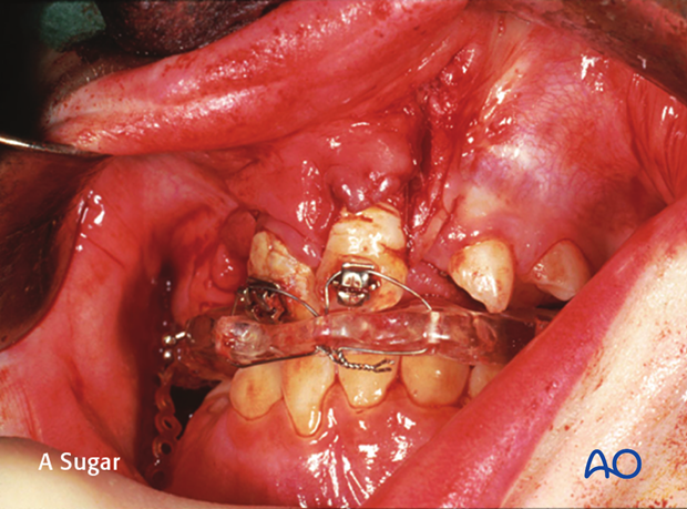 Alveolar bone grafting of bilateral cleft lip and palate with displaced premaxilla - CLP