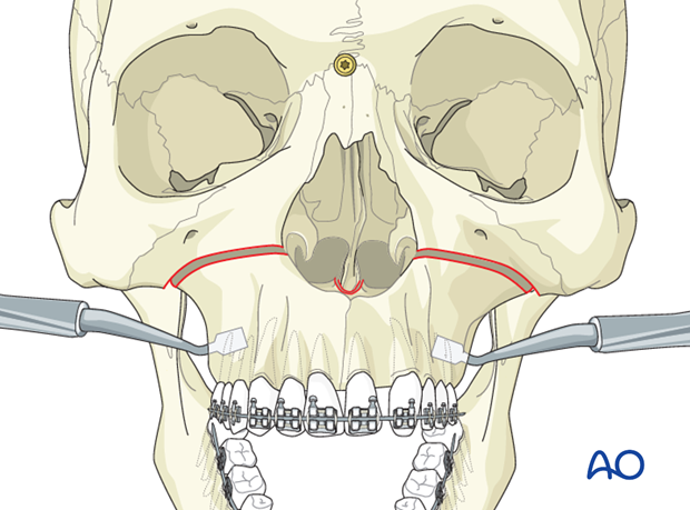 Le Fort I osteotomy in cleft lip and palate patients