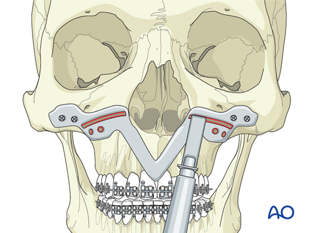 Le Fort I osteotomy with distraction osteogenesis in cleft lip and palate patients